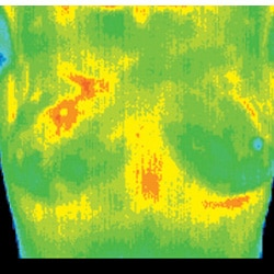 Chiropractic Jacksonville FL Baseline Thermograph
