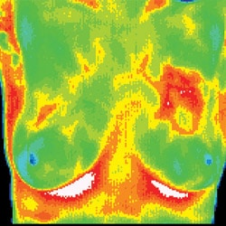 Chiropractic Jacksonville FL Ductal Carcinoma Thermograph