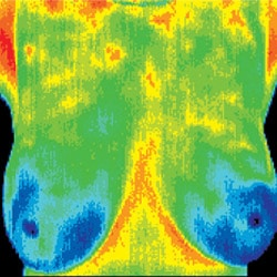 Chiropractic Jacksonville FL Normal Thermograph